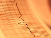 Recommendations for use of wearable cardioverter-defibrillators are presented in a scientific statement issued by the American Heart Association and published online March 28 in <i>Circulation</i>.