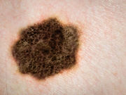 Patients with melanoma often have few typical nevi