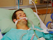Many caregivers of critically ill patients receiving mechanical ventilation in an intensive care unit report high levels of depressive symptoms
