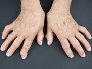 Probiotic supplementation seems beneficial for patients with rheumatoid arthritis