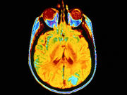 Patients in the early stages of Alzheimer's disease may have more leakages in the blood-brain barrier