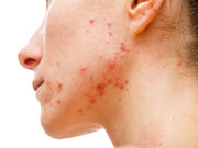 About half of adult women with acne