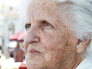 Life expectancy does not appear to influence patterns of treatment for keratinocyte carcinoma