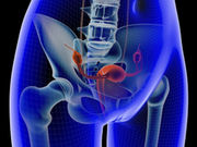 Surgery may significantly extend ovarian cancer patients' lives