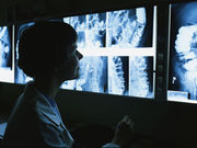 There is considerable variation in computed tomography radiologists' reporting workload across different tests