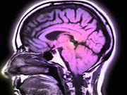 A genetic test may one day be able to predict the risk for Alzheimer's disease in young adults
