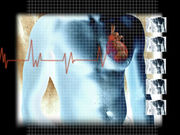 Patients who develop heart failure after myocardial infarction may also face a higher risk of cancer