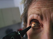 Prasugrel carries no increased ocular risk compared with clopidogrel
