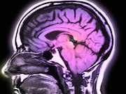 Low memory scores are an early marker of amyloid positivity