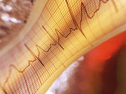 Cardiologist care is associated with a lower rate of death in patients with new-onset atrial fibrillation