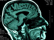 Parkinson's disease patients with depression have impaired white matter integrity