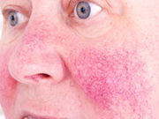 Oxymetazoline is safe and effective for the treatment of moderate-to-severe persistent erythema of rosacea