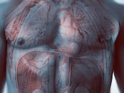 Screening men for abdominal aortic aneurysm (AAA) does not reduce AAA-related mortality