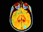 For patients with melanoma and untreated brain metastases