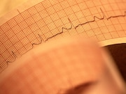 For high-risk patients with implantable cardioverter-defibrillators (ICDs)