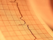 Atrial fibrillation is associated with a faster global cognitive decline and an increased risk for dementia in older people