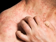 The mean cumulative lifetime prevalence of atopic eczema is 9.9 percent
