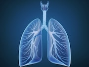 Recipients of a lung transplant