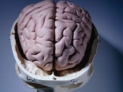 Obesity is associated with lower gray matter brain volumes