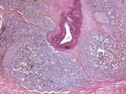 In men with low-risk and intermediate-risk prostate cancer