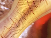 Incident atrial fibrillation is associated with increased dementia risk in elderly populations