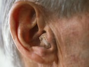 Use of hearing aids is associated with lower risks for being diagnosed with Alzheimer disease