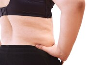 Overweight and obese patients are overwhelmingly pleased with the results of tummy tuck procedures