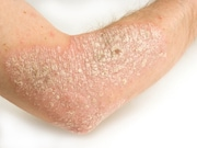 Patients with psoriasis have an increased risk for developing or dying from cancer