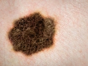 More patients with advanced melanoma receiving nivolumab plus ipilimumab or nivolumab alone have sustained long-term survival at five years compared with those receiving ipilimumab alone