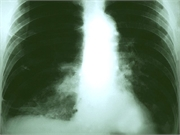 Receiving treatment is associated with better survival for nonagenarians with non-small cell lung cancer