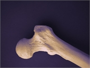 Obese and overweight older individuals who lose weight have lower bone mineral density in their hips