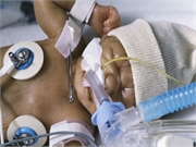 Holding intubated infants in the intensive care unit is well tolerated and does not increase adverse events