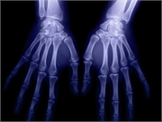 Palm and finger temperatures are significantly increased in patients with rheumatoid arthritis without active inflammation compared with healthy controls