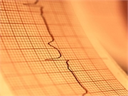 Vital exhaustion is associated with an increased risk for incident atrial fibrillation
