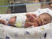 For extremely preterm infants