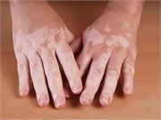 Atopic dermatitis is associated with vitiligo