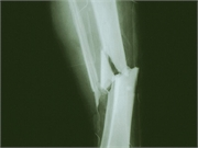 The risk for bone fracture is increased after gastric bypass surgery