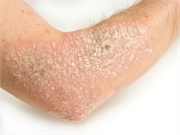 Patients with psoriasis may have a slightly increased risk for cancer
