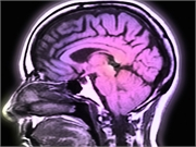 Greater genetic predisposition for multiple sclerosis is associated with altered brain white matter development at an early age