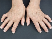 Patients with rheumatoid arthritis have low awareness about associated cardiovascular risk