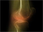 There is no clear benefit of bisphosphonates on bone marrow lesions