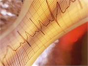 For patients with an indication for an implantable cardioverter defibrillator (ICD) but no indication for pacing