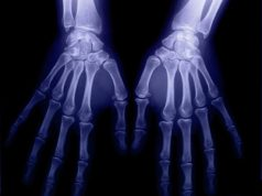 Genetically predicted body mass index significantly increases the risk of rheumatoid arthritis