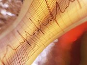 Myocardial infarction events may occur earlier in life in patients with psoriasis