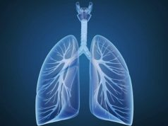Preventive antifungal medications cut the risk for death following a lung transplant by more than half
