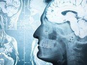 Multinutrient Intervention Slows Cognitive Decline in Alzheimer Disease