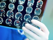 More Brain Issues Among COVID Patients Cited