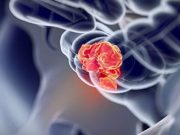 Pembrolizumab Slows MSI-H-dMMR Metastatic CRC