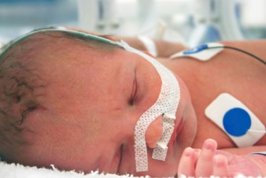 Preoperative Blood Transfusion Not Beneficial for Surgery in Neonates