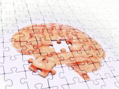 Aphasia Affects Brain Similar to Alzheimer's